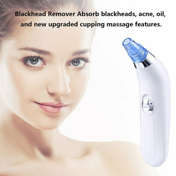 Blackhead Remover Pore Vacuum Cleaner With 4 Suction Power