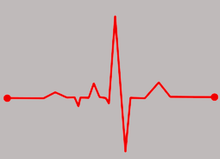 Load image into Gallery viewer, The EKG