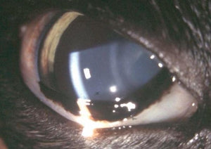 Under Pressure: Uveitis and Glaucoma