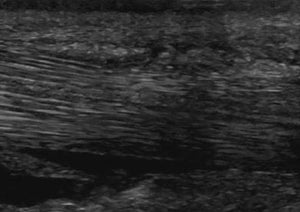Update on Ultrasound Examination of the Distal Limb