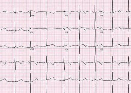 Diagnosis & Management of the Most Common Cardiac Arrhythmias of Dogs & Cats