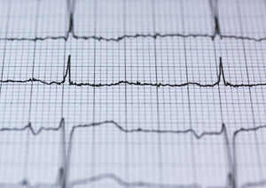 Finding a good rhythm - ECG interpretation