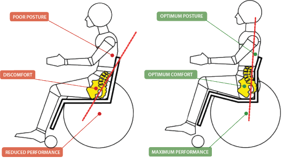 Wheelchair clinical seating and positioning