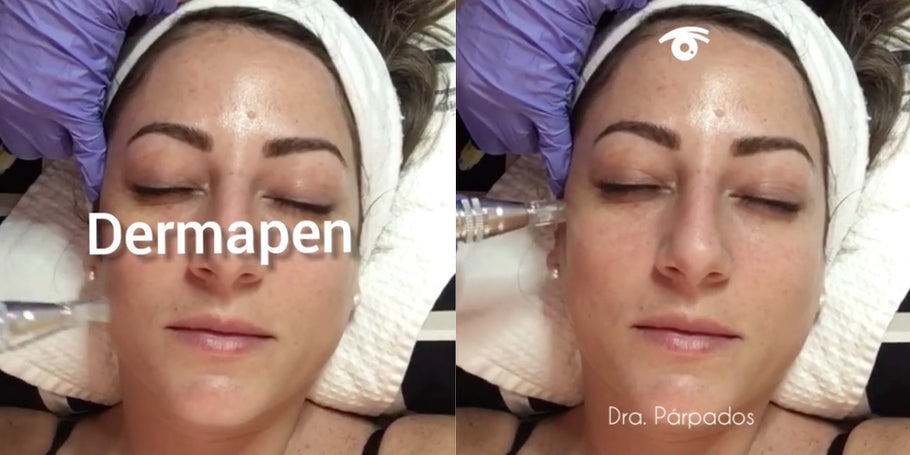 Dra. Parpados resumes consultations and applies treatment with Dermapen
