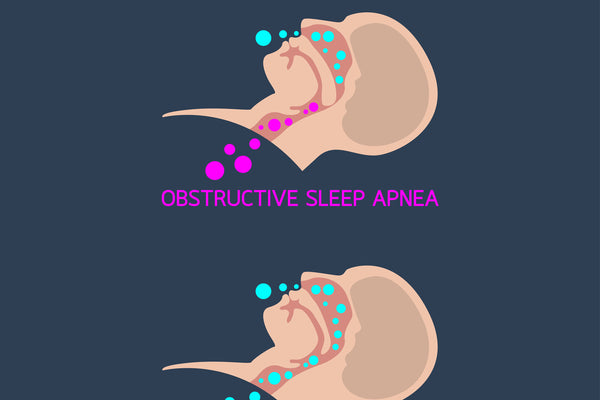 Understanding the Relationship Between Sleep Apnea and GERD