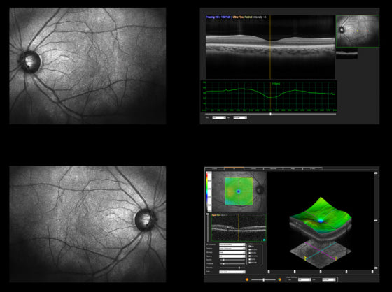 A screenshot of an optical coherence tomography (OCT) scan.