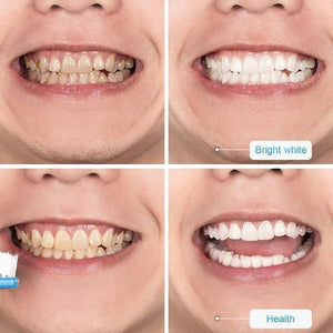 【LAST DAY PROMOTION】 - Intensive Stain Removal Teeth Whitening Toothpaste