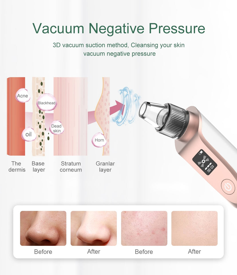 Blackhead Vacuum Extractor - Wish Tricks