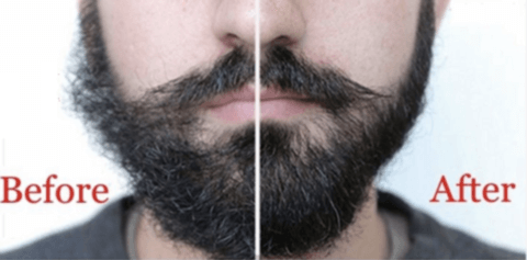 comparison of beard deals streak