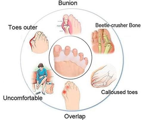 orthopedic toe corrector