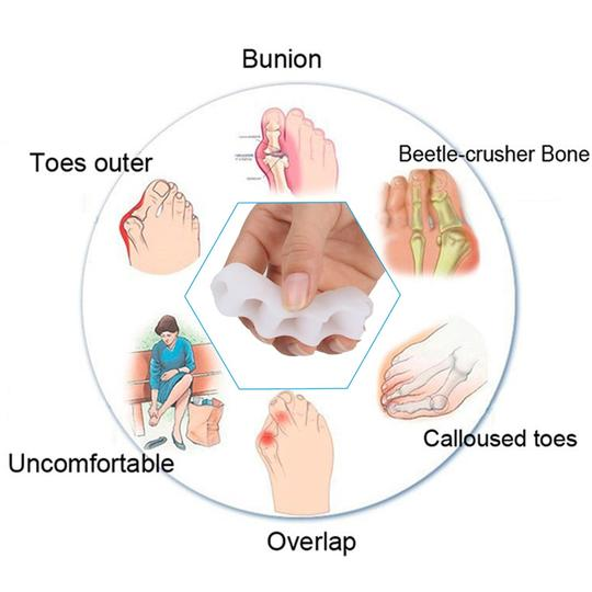 features of toe separator