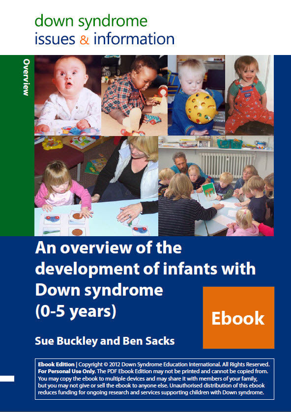 An Overview of the Development of Infants with Down Syndrome (0-5 years) - PDF Ebook