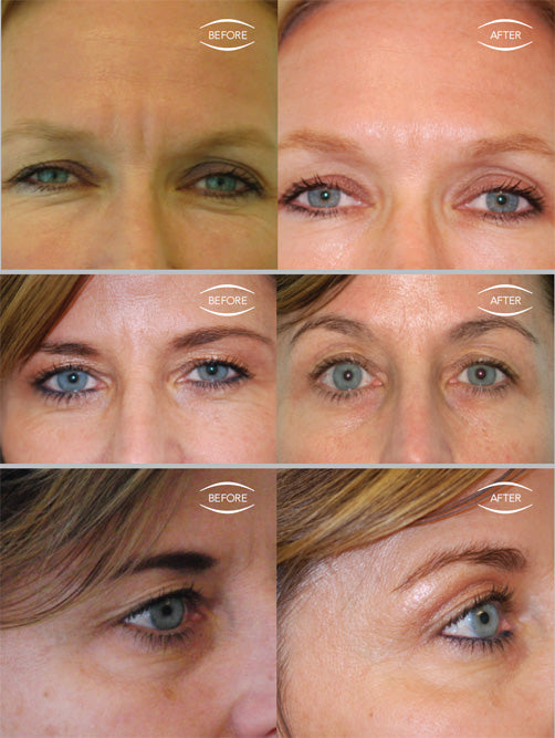 Laxity of Eye Area