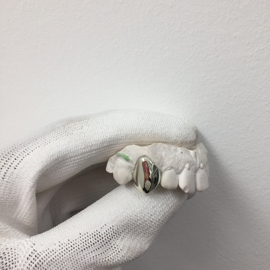 Single White Gold Tooth