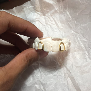 Single Yellow Gold Tooth