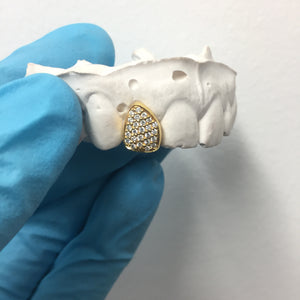 Single Yellow Gold & Diamond Tooth