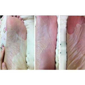 Baby Feet Exfoliating Foot Mask