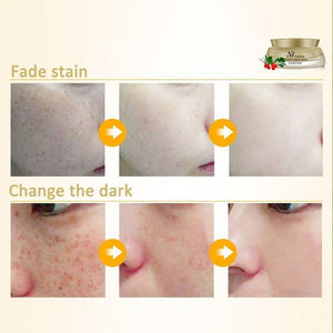 Freckles Scars Removal Peel Mask