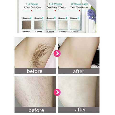Image of EpilPulse: Painless Laser Hair Removal with Pulsed Light - Hair Permanent and Naturally Removed