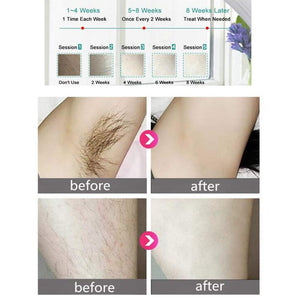 EpilPulse: Painless Laser Hair Removal with Pulsed Light - Hair Permanent and Naturally Removed