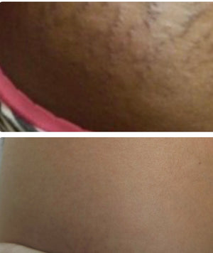 Elastin Stretch Mark Concentration