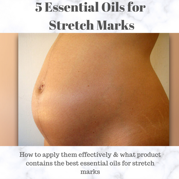 5 Essential oils for Stretch Mark Prevention