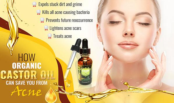 How Organic Castor Oil can Save You From Acne