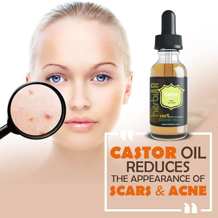 Castor oil reduces scars and acne