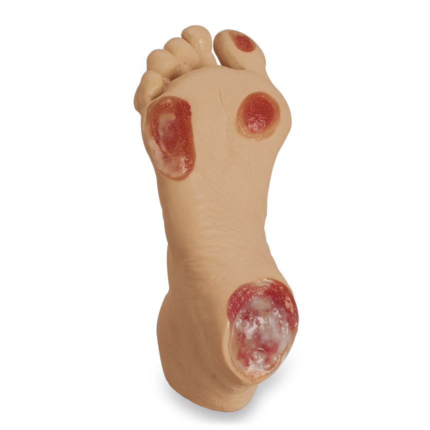 Life/form® Elderly Pressure Ulcer Foot - Light