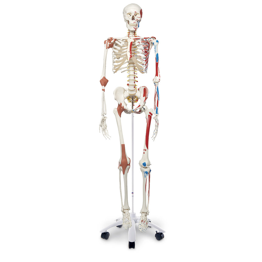 Superskeleton