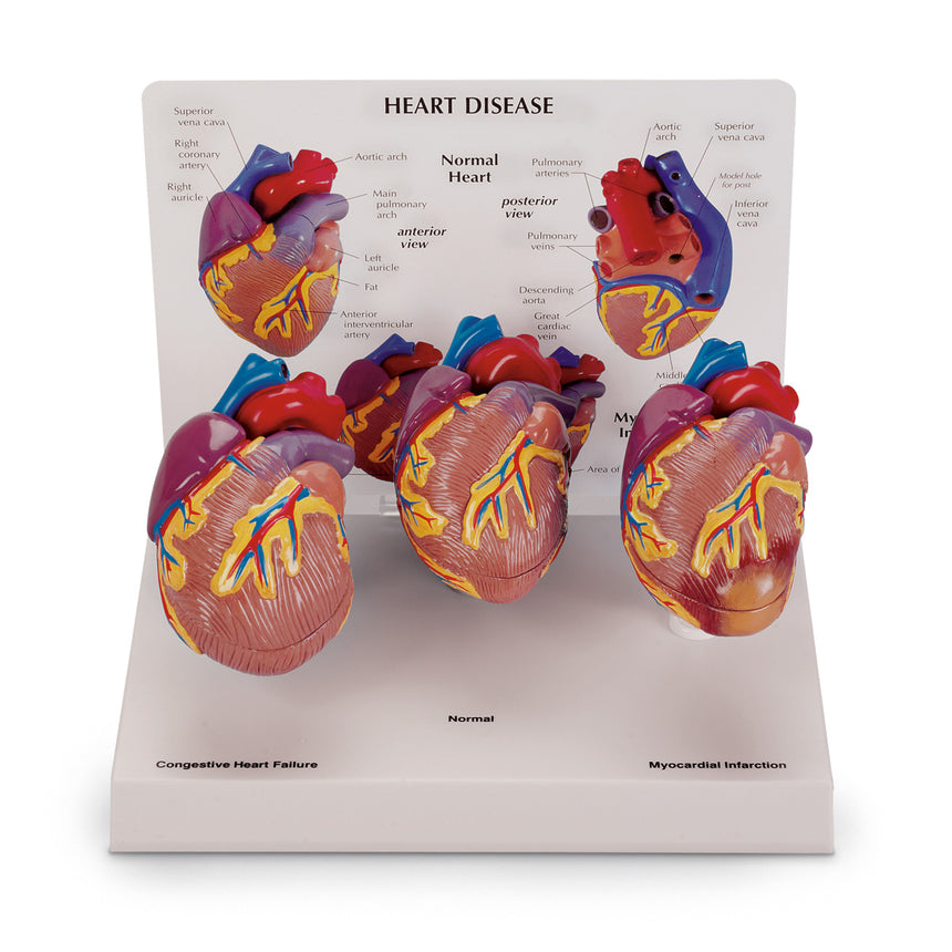 3-Piece Mini Heart Set Models