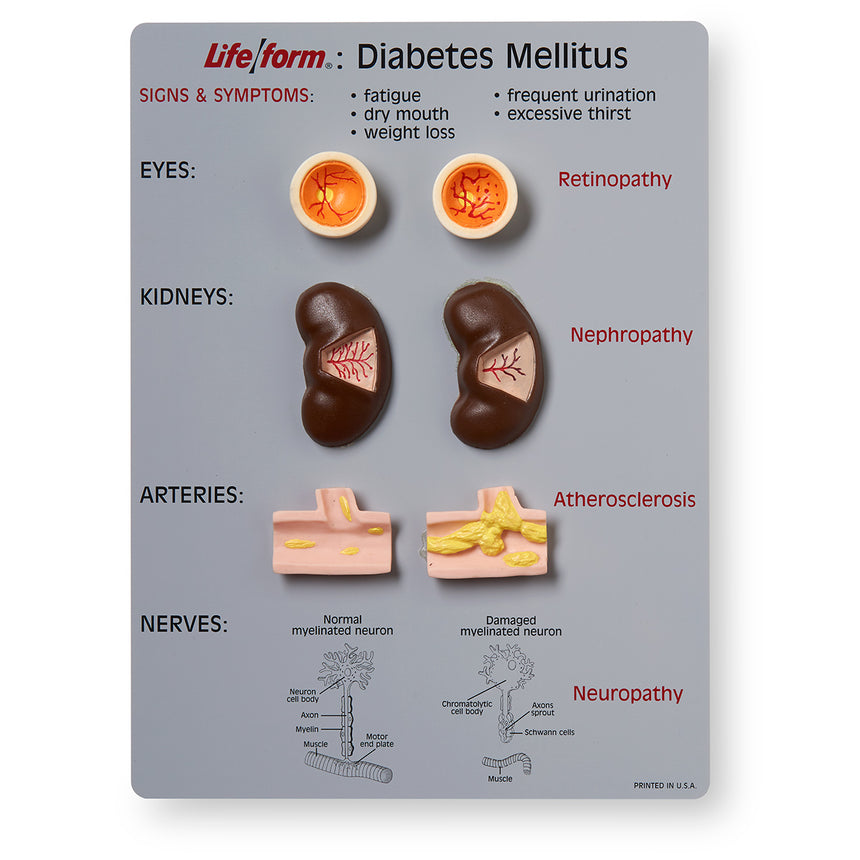 Life/form® Diabetes Mellitus Teaching Kit