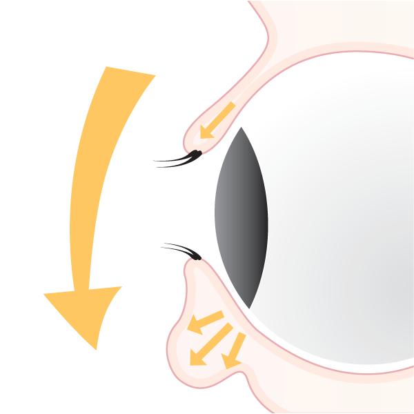 Loss of muscle tone and elasticity are main causes of eyelid sagging or 'hooding'.