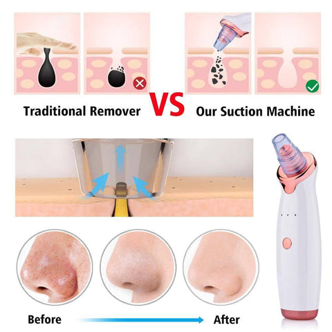 Image of Vacuum Pore Cleaner Blackhead Remover Electric Nose Face Deep Cleansing