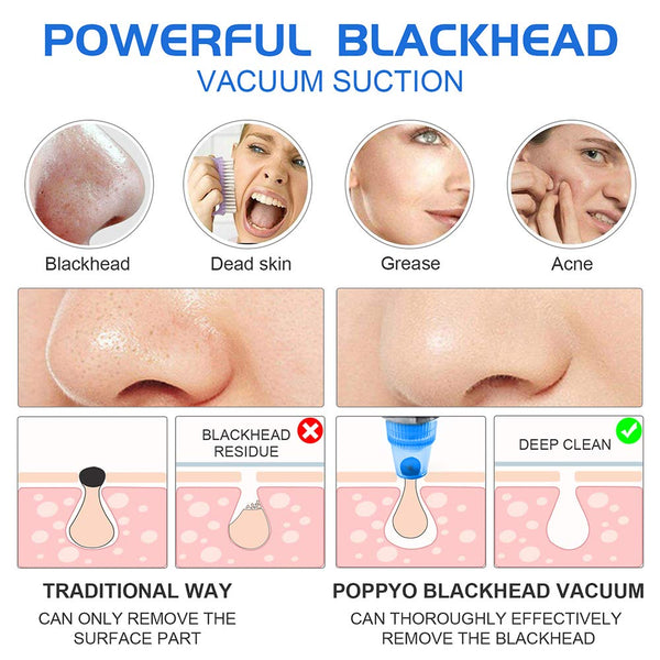 Blackhead Remover Pore Vacuum - Electric Blackhead Vacuum Cleaner Blackhead Extractor Tool Device Comedo Removal Suction Beauty Device for Women