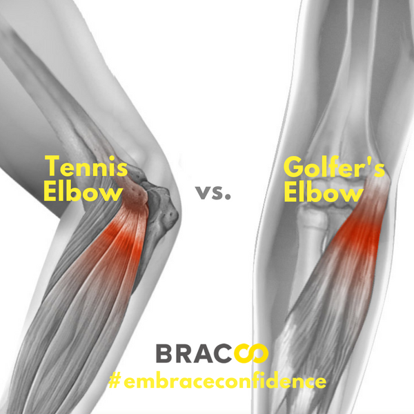Tennis Elbow vs Golfer's Elbow
