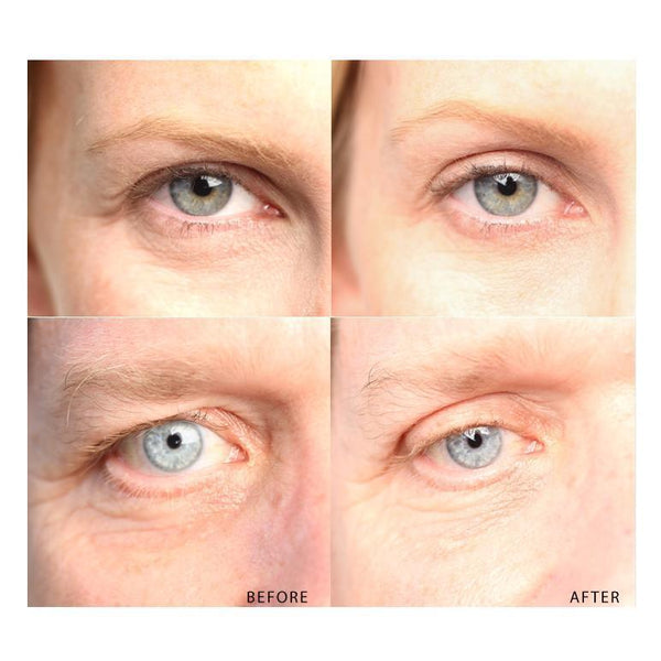 Say NO to Aging! Familiarize Yourself with this Anti Aging Eyelid Tape