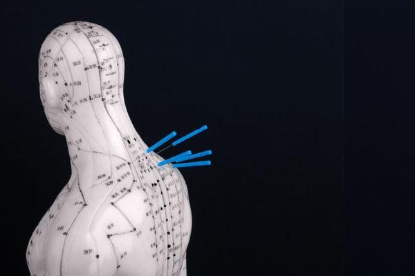 What Conditions Can Be Treated With Acupuncture – See The List