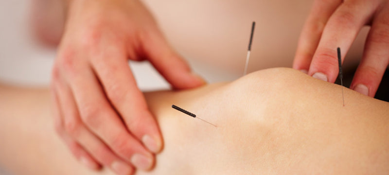 Shop acupuncture needles in laval at lierre