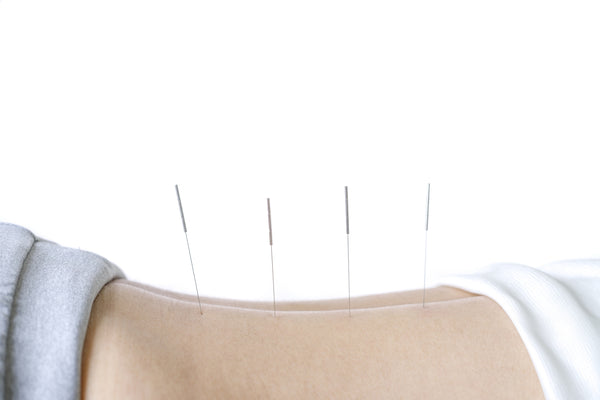 Shop professional acupuncture needles at lierre