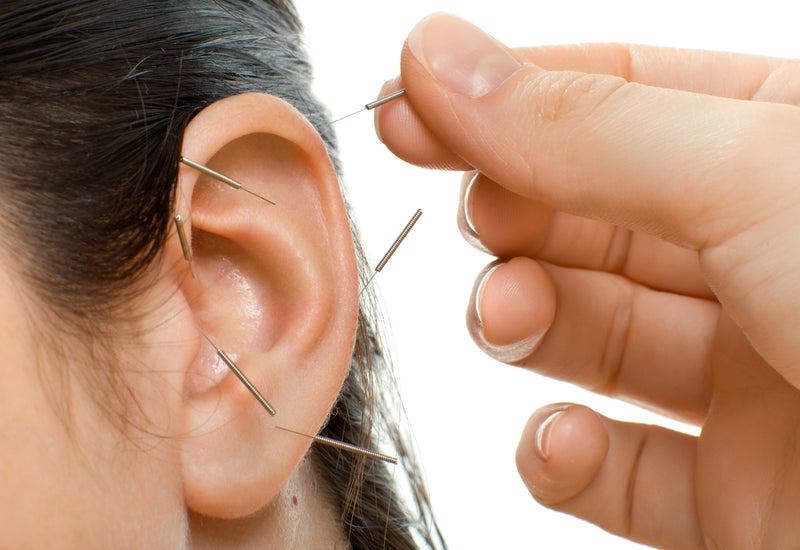 shop ear acupuncture needles at lierre