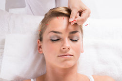 Does Acupuncture Hurt – A Real-Life Glimpse into What to Expect During And After