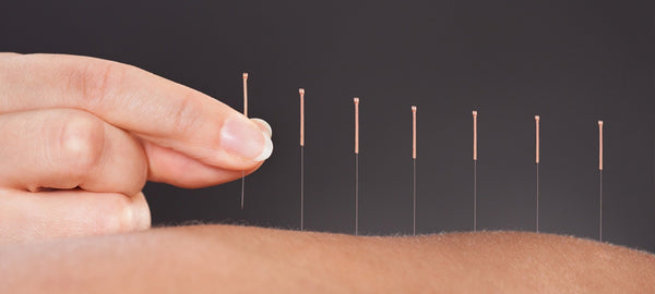 acupuncture needles from Lierre.ca