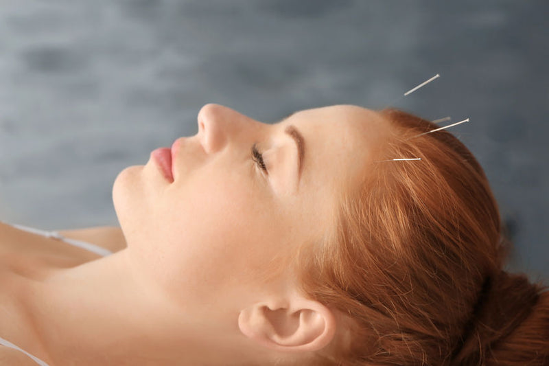 buy acupuncture needles from lierre canada