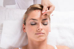 shop acupuncture supplies in canada at lierre.ca