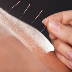 buy acupuncture needles for weight loss at lierre.ca