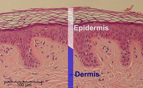 Layers of the Epidermis (By Normal_Epidermis_and_Dermis_with_Intradermal_Nevus)