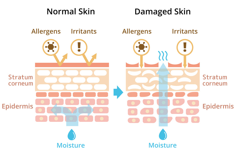 Skin Barrier Function