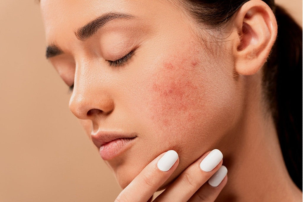 Get Rid of Facial Redness with Skin-Friendly Serums