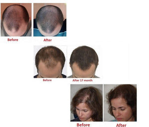 FDA Cleared 272 Laser Diodes Hair Regrowth Helmet Cap for Hair Loss Treatment for Men and Women. LLLT 650nm